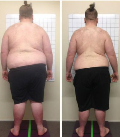 Before and after rear photos of Richard Love